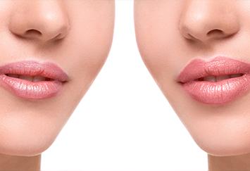 3d-lips-03